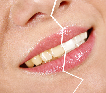 teeth whitening product types