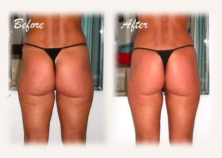 Herbal Body Wrap to eliminate cellulite